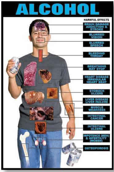 Irritation of the intestinal tract lining and the colonPancreas Affected By Alcohol